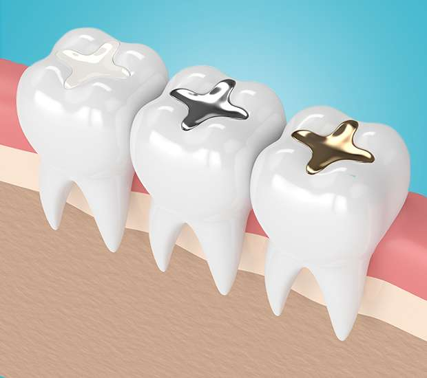 Ballston Spa Composite Fillings