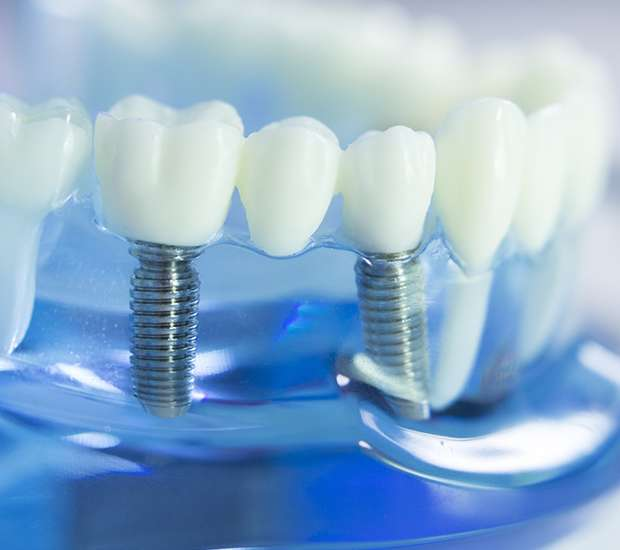 Ballston Spa Dental Implants