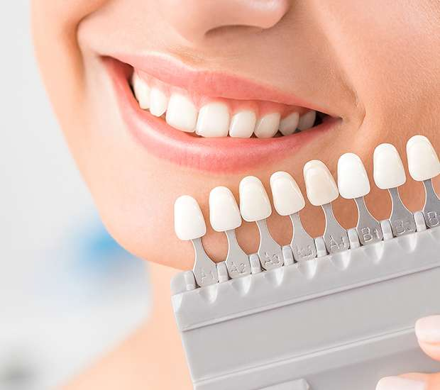 Ballston Spa Dental Veneers and Dental Laminates