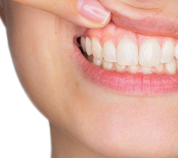 Ballston Spa Gum Disease